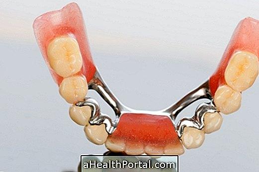 Types de prothèses dentaires et soins