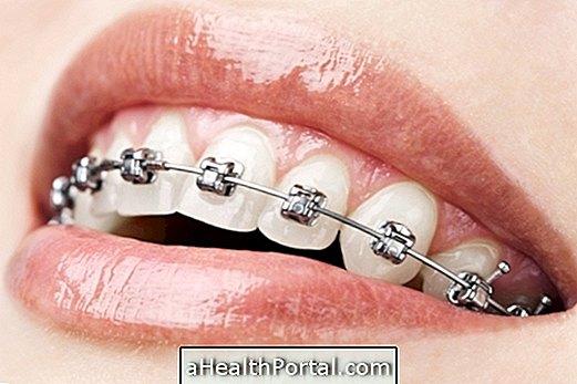 Appareil orthodontique: connaître les principaux types