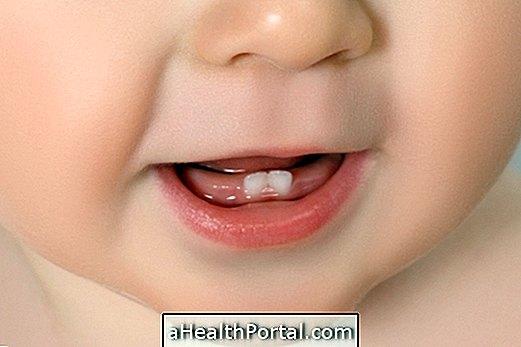 כאשר שיני תינוקות נולדים