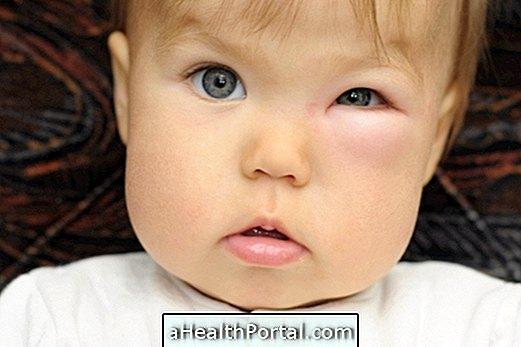 Целулитис у очима: Решење и ризик од заразе