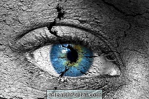 Hva er hypertensive retinopati og hva er symptomene