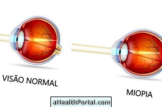 Hogyan lehet azonosítani a Myopia és mi a teendő gyógyítani