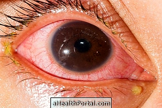 How To Treat Uveitis