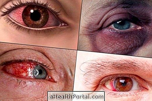 כיצד לטפל פגיעה בעין