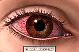 How to Remove the Blood Stain in the Eye