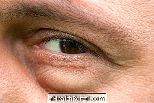 Swollen eyes: What can be and how to treat