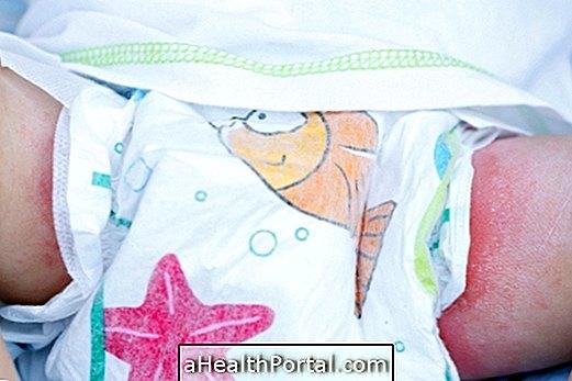 Kontaktirajte dermatitis u bebi i kako liječiti