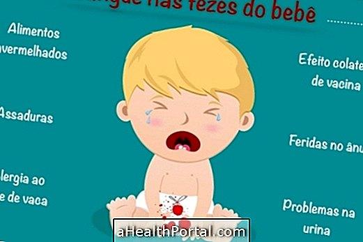 Principales causes de sang dans les selles de bébé
