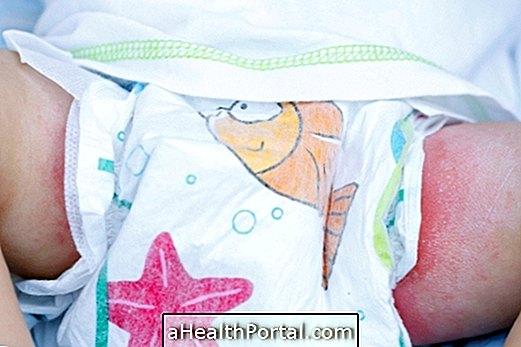 Bebekte En Yaygın Cilt Sorunları