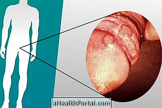 How to identify and treat candidiasis in men