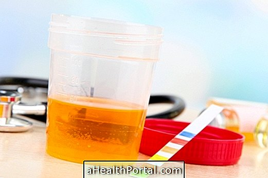 Dark urine: Know the main causes and what to do
