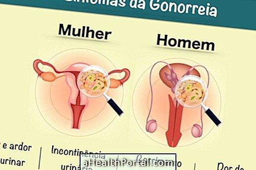 A gonorrhea tünetei